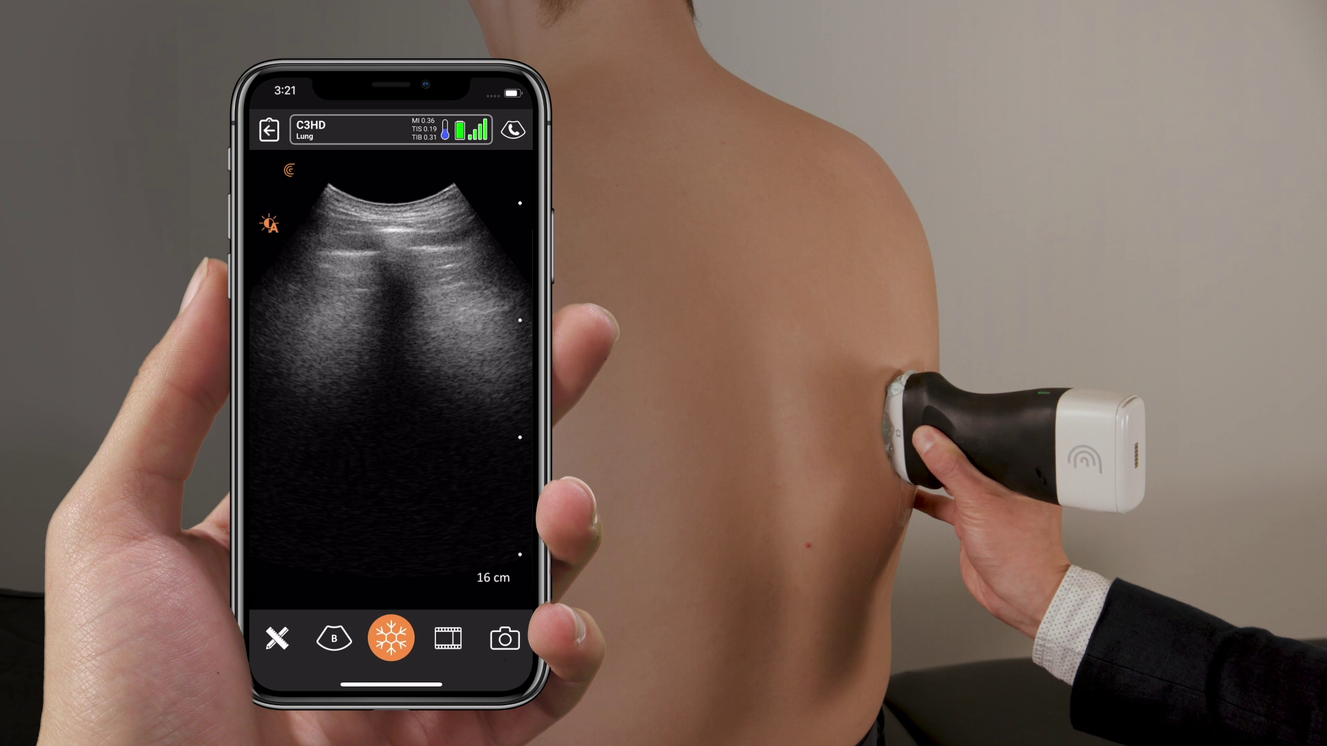 A high-quality image is transmitted from Clarius' wireless handheld ultrasound scanner to a smartphone.
